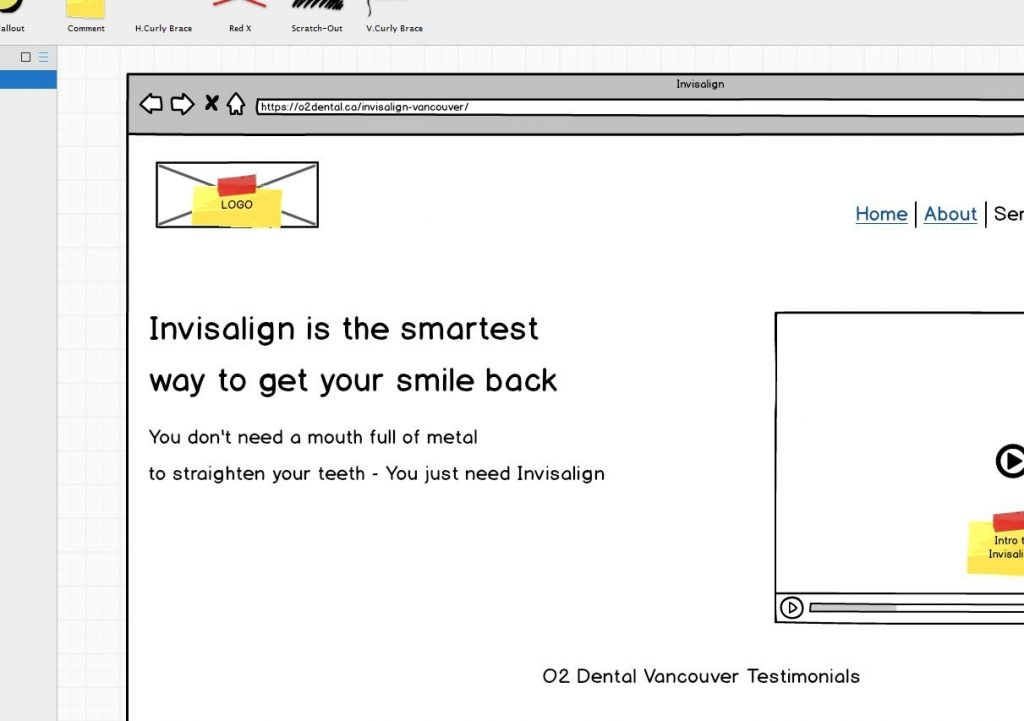 Invisalign page wireframe